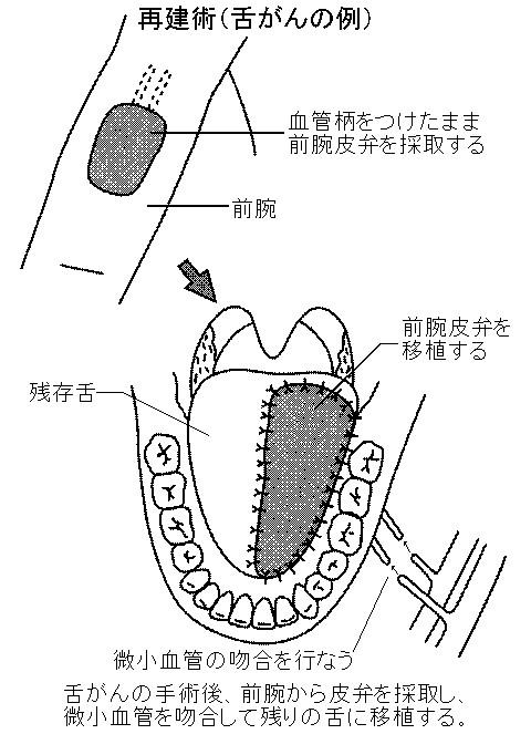 舌癌 症状 画像