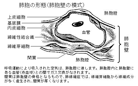 図「肺胞の形態(肺胞壁の模式)」)。 肺実質におこる病気としては、細菌が... カンシツセイハイ