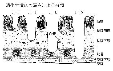 消化性潰瘍(胃潰瘍/十二指腸潰...