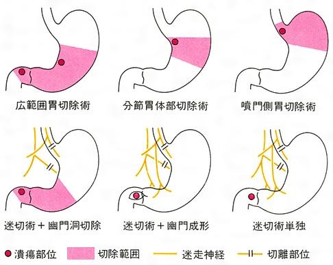 症状 十二指腸 潰瘍