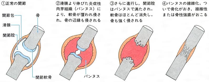 関節リウマチとは - コトバンク