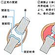 関節リウマチ(読み)かんせつりうまち(英語表記)rheumatoid arthritis
