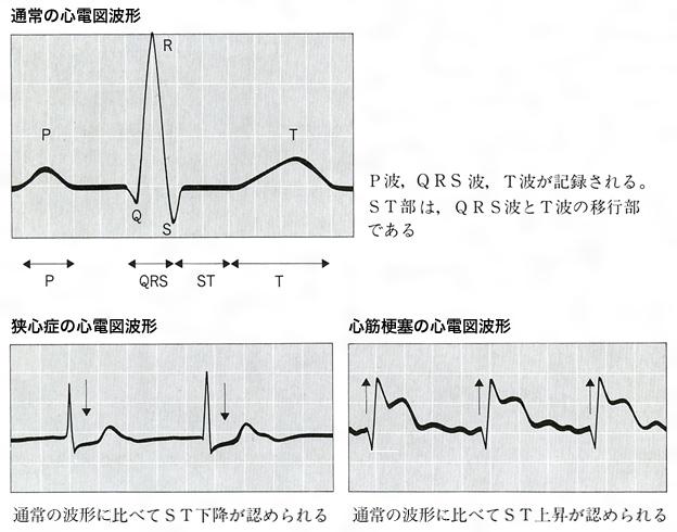 種類 心電図 波形